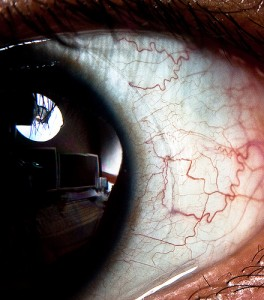 Eye with blood vessels